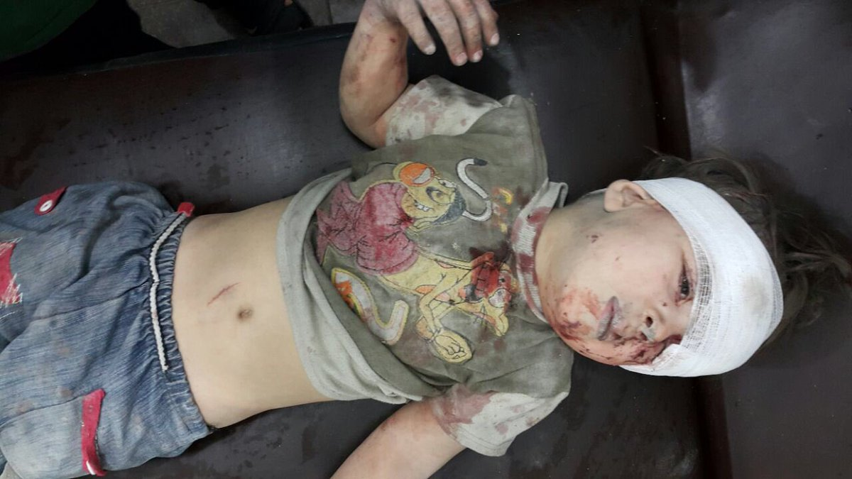 syrian kid amran injured1