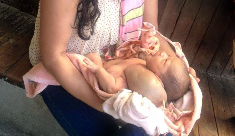 Abnormal-Baby-born tumor