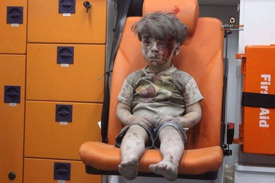 syrian kid amran injured